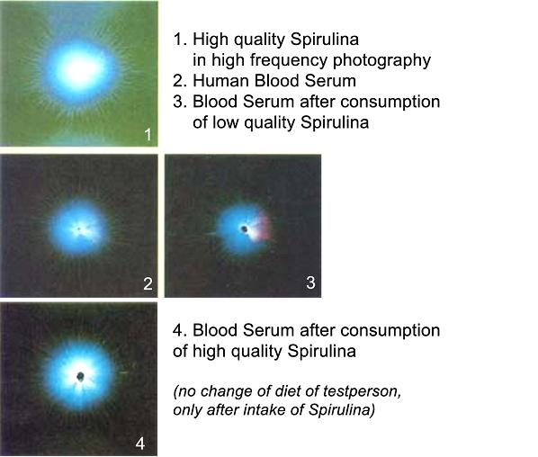 microscope-pics-spirulina